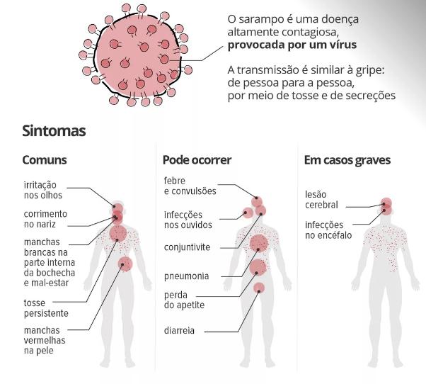 Resultado de imagem para sarampo contágio facil
